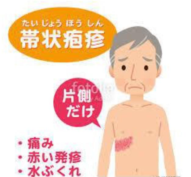 江南市 整体 帯状疱疹後神経痛
