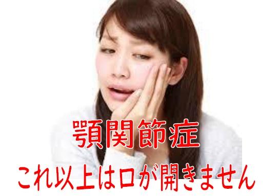 顎関節症 整体 江南市 江南健生堂 口が開かない