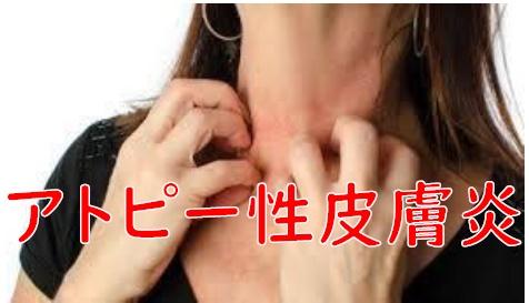 アトピー性皮膚炎 アトピー 江南市 整体 江南健生堂